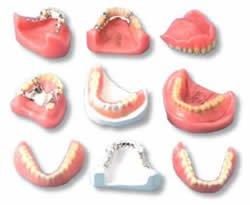partial-vs_-full-dentures
