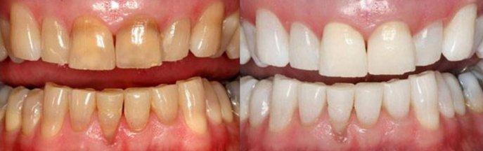 Teeth Whitening - Illinois Valley Teeth Whitening Patient
