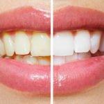 Teeth Whitening Treatment - LaSalle - Peru - Princeton Illinois
