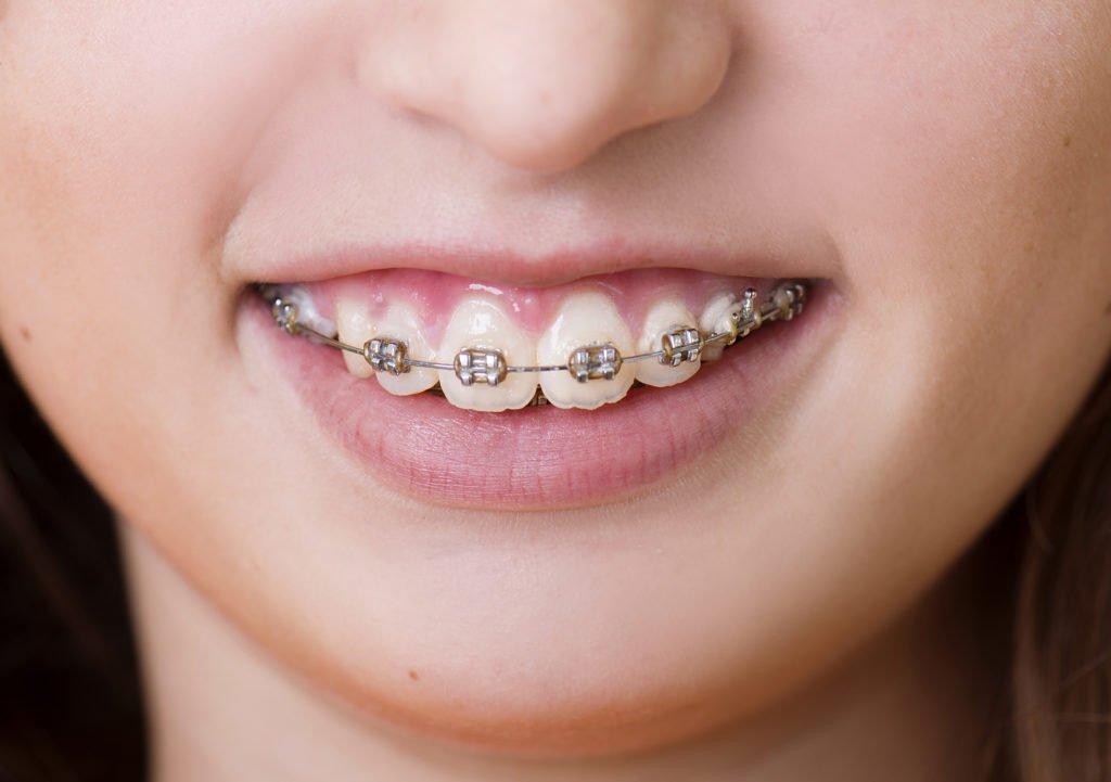 DIY braces can be dangerous
