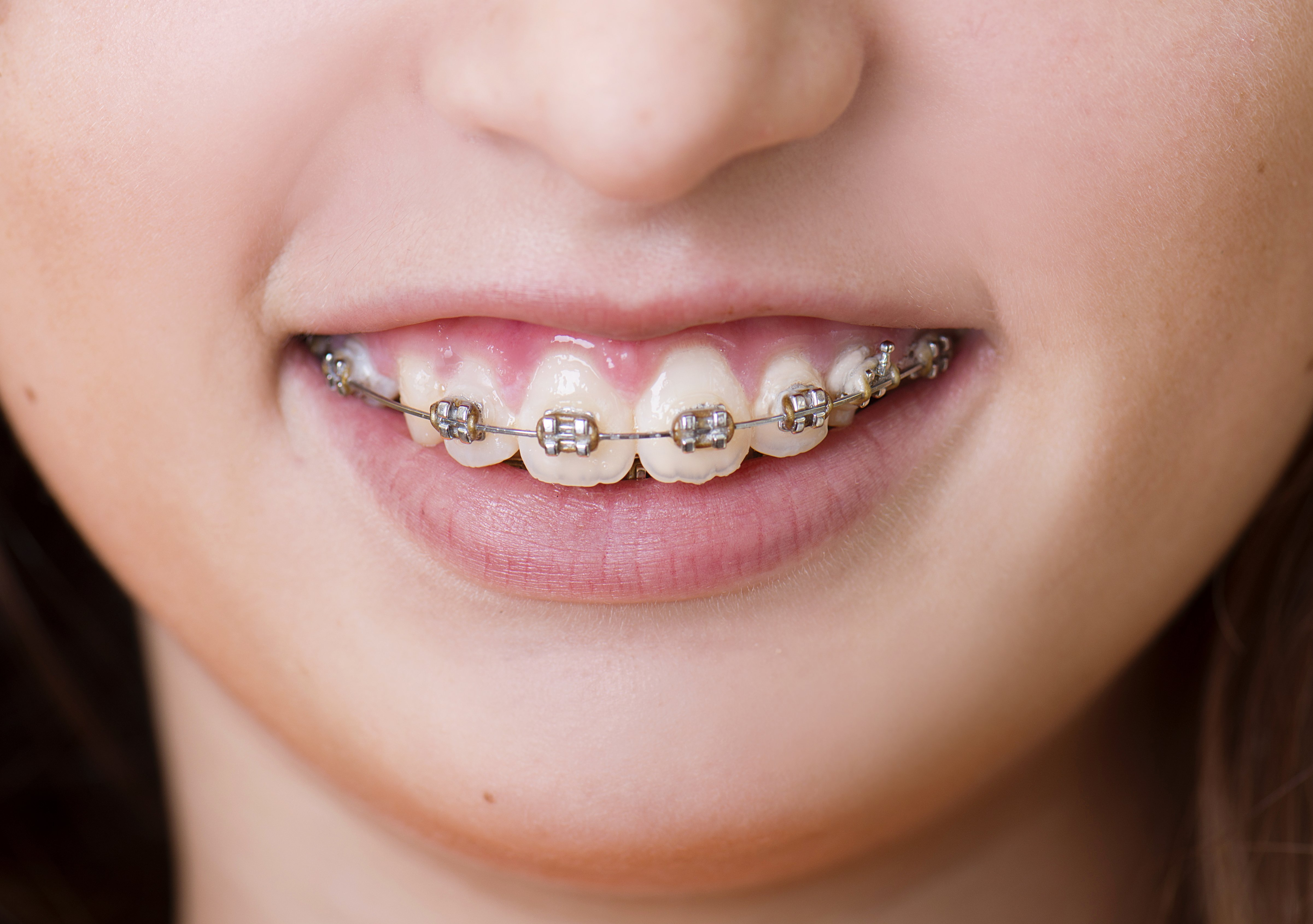 Do it yourself braces archives a lifetime of smiles a lifetime of diy braces can be dangerous solutioingenieria Image collections