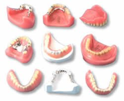 partial-vs_-full-dentures