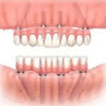 All On Four Implant Retained Bridge