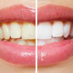 Teeth Whitening Treatment - LaSalle - Peru - Princeton Illinois
