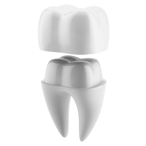 model of crown on tooth
