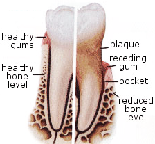 Normal Tooth vs. Periodontitis